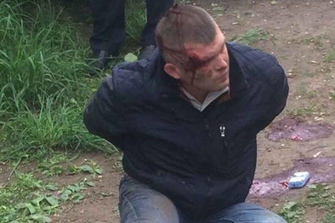 Поліція відкрила справу щодо побиття охоронця Яроша