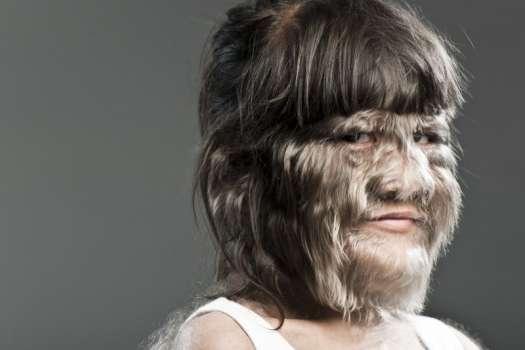 Самая волосатая в мире девушка вышла замуж и сбрила все волосы с лица - Главком