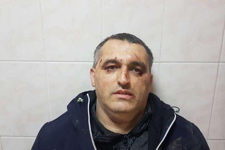 У Чернівцях нападники побили арматурою антикорупціонера