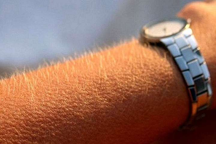 Мурашки на коже способствуют росту волос