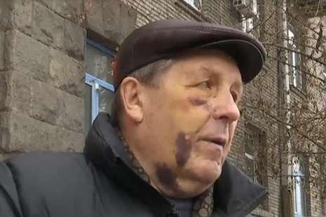 81-річний&nbsp;<span>Віктор Ковальський отримав струс мозку, пошкодження зуба і спини</span> - Побиття авіаконструктора у Києві: поліція відкрила справу
