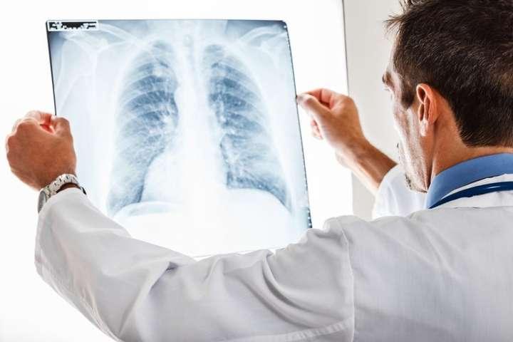Київський дитячий кардіоцентр купив рентген-системи за 75 млн грн