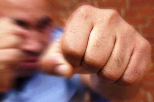 ДБР повідомило поліцейському про підозру в побитті 17-річного юнака у Полтаві