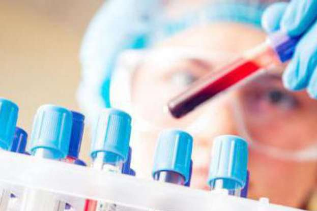Гемоглобін– білок крові, він містить залізо та транспортує кисень до тканин усіх органів. Якщо гемоглобін нижчий за120 – це заниження від норми і називаєтьсяанемією - Про що свідчить ваш аналіз крові