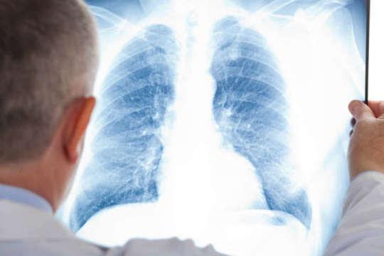 Результат пошуку зображень за запитом пневмонія
