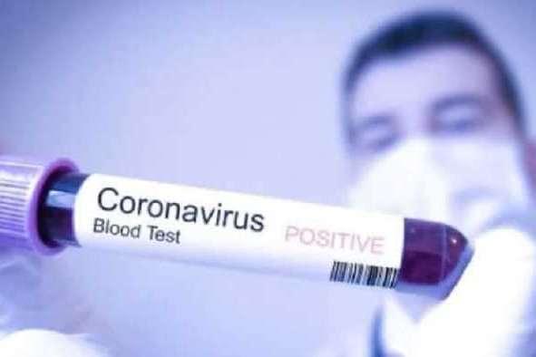 В Росії за добу кількість хворих на коронавірус зросла на третину - Коронавірус у Росії. За добу кількість хворих зросла на третину
