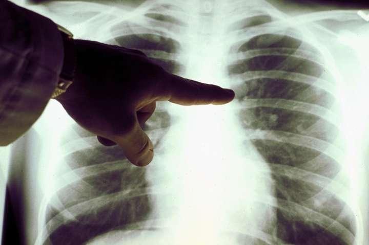 У Дніпрі 45-річний чоловік помер від пневмонії - Причиною смерті чоловіка в Дніпрі став не коронавірус