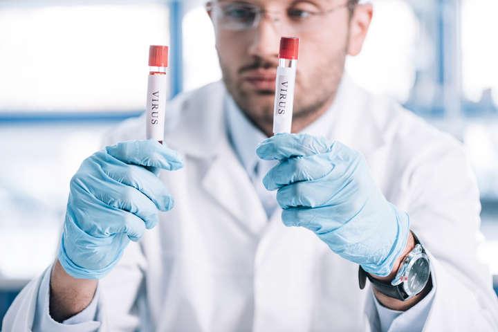 На Львівщині коронавірус виявили у 57-річного чоловіка - На Львівщині коронавірус виявили у чоловіка, який повернувся з Італії