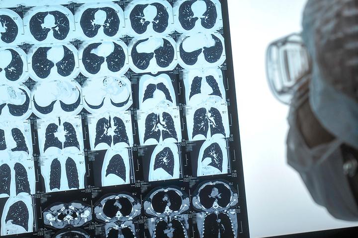 Науковці розкрили ймовірність настання найважчих наслідків коронавірусу