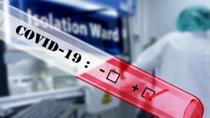 Чому МОЗ припинив публікувати дані щодо тестування на коронавірус у кожній лабораторії