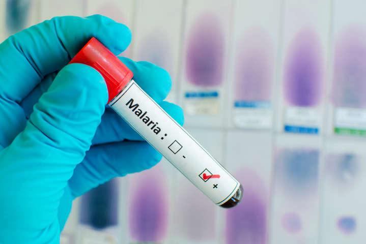 Туроператори не попередили росіян про небезпеку підчепити екзотичну інфекцію — Троє росіян померли від малярії після відпочинку в Африці