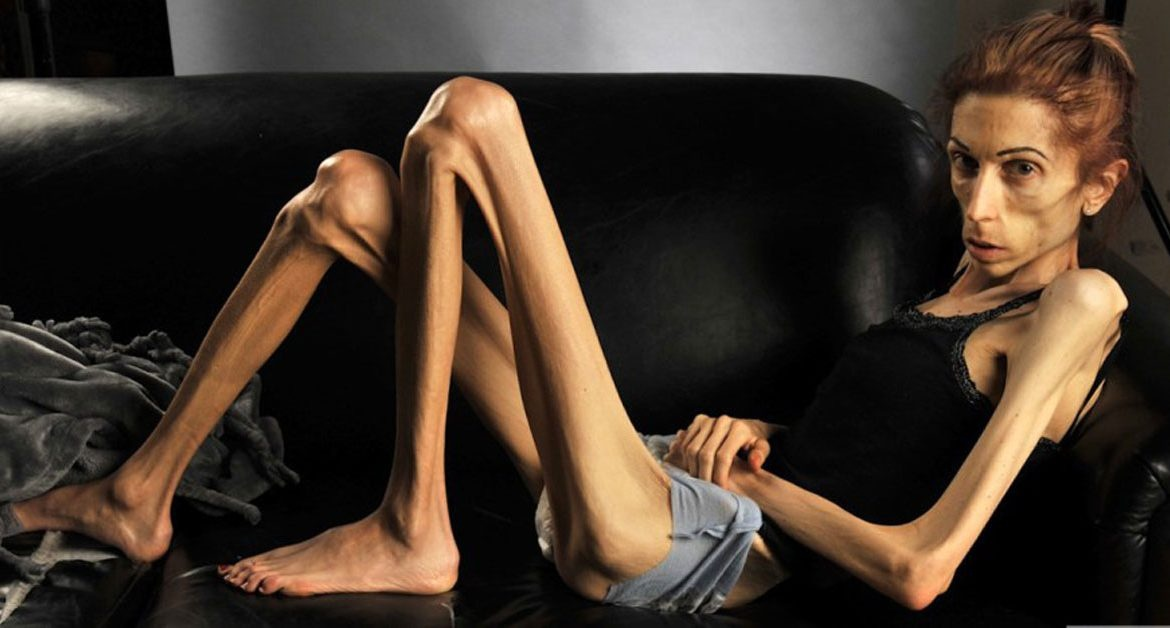 how proanorexia websites exacerbate the eating disorder - 1170×628