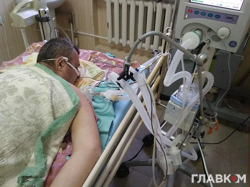 Хворий з Шепетівки, який був підключений до апарату ШВЛ 42 дні. Фото надано лікарем