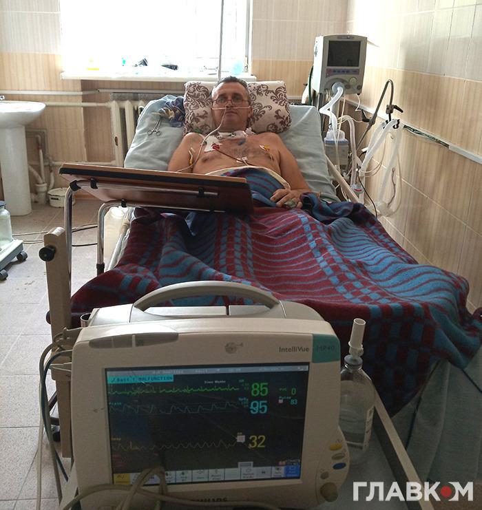 Хворий на апараті ШВЛ, який був підключений 42 дні. Фото надано лікарем