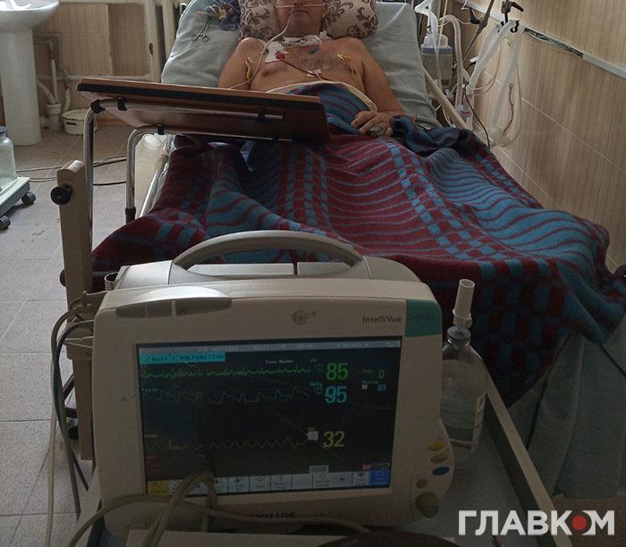 Хворий на апараті ШВЛ, який був підключений 42 дні