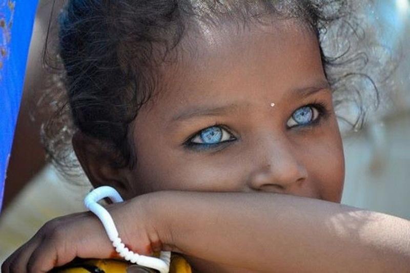Голубые Негры С Белыми Фото