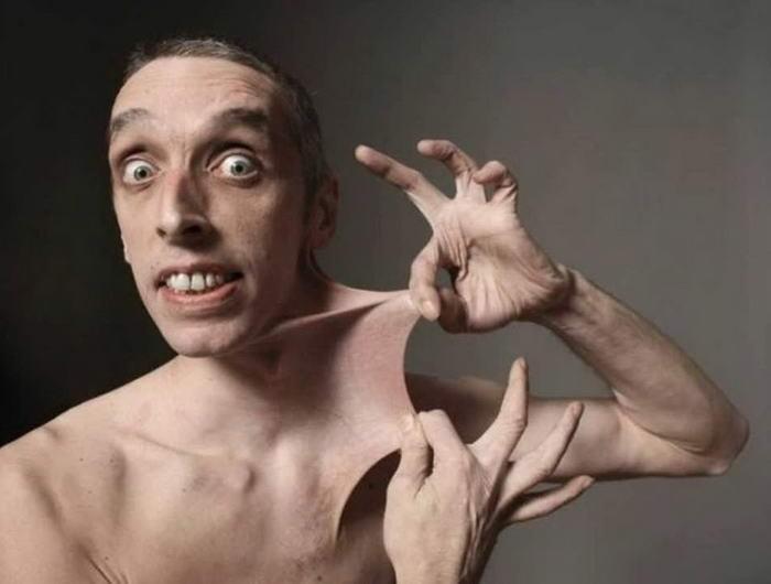 Гарри Тернер из Великобритании может растягивать свою кожу на животе на 15,8 см. Причиной этого является редкое заболевание, называемое синдромом Элерса-Данлоса.