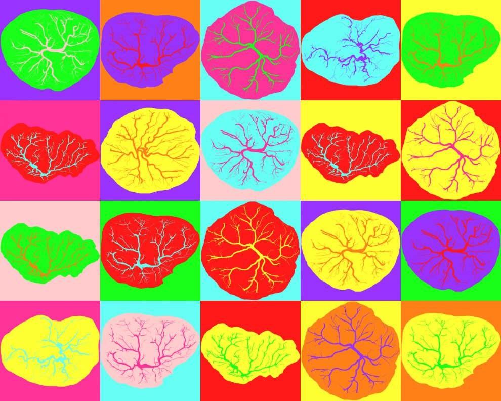 Плаценты служат одной важной цели — поддерживают новую жизнь, однако они фантастически разнообразны по форме и внешнему виду.