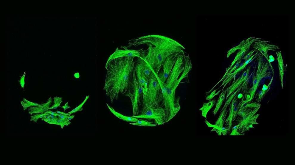 Этот снимок относится к способности материалов эффективно выращивать стволовые клетки. Способность клеток прикрепляться к различным материалам является важным шагом на пути к открытию новых биоматериалов, а способность стволовых клеток превращаться в клетки различных органов и тканей — важным шагом на пути к выздоровлению.
