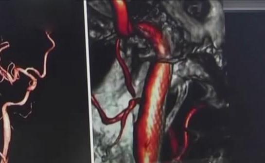 Китаянка так довго дивилася в телефон, що це призвело до інфаркту мозку