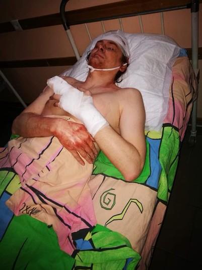 У Кривому Розі жорстоко побили громадського діяча: моторошні фото