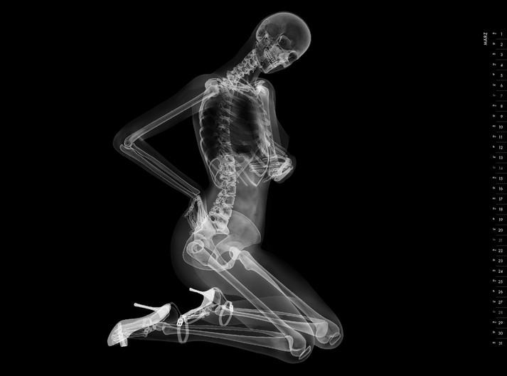 Картинка рентген девушки