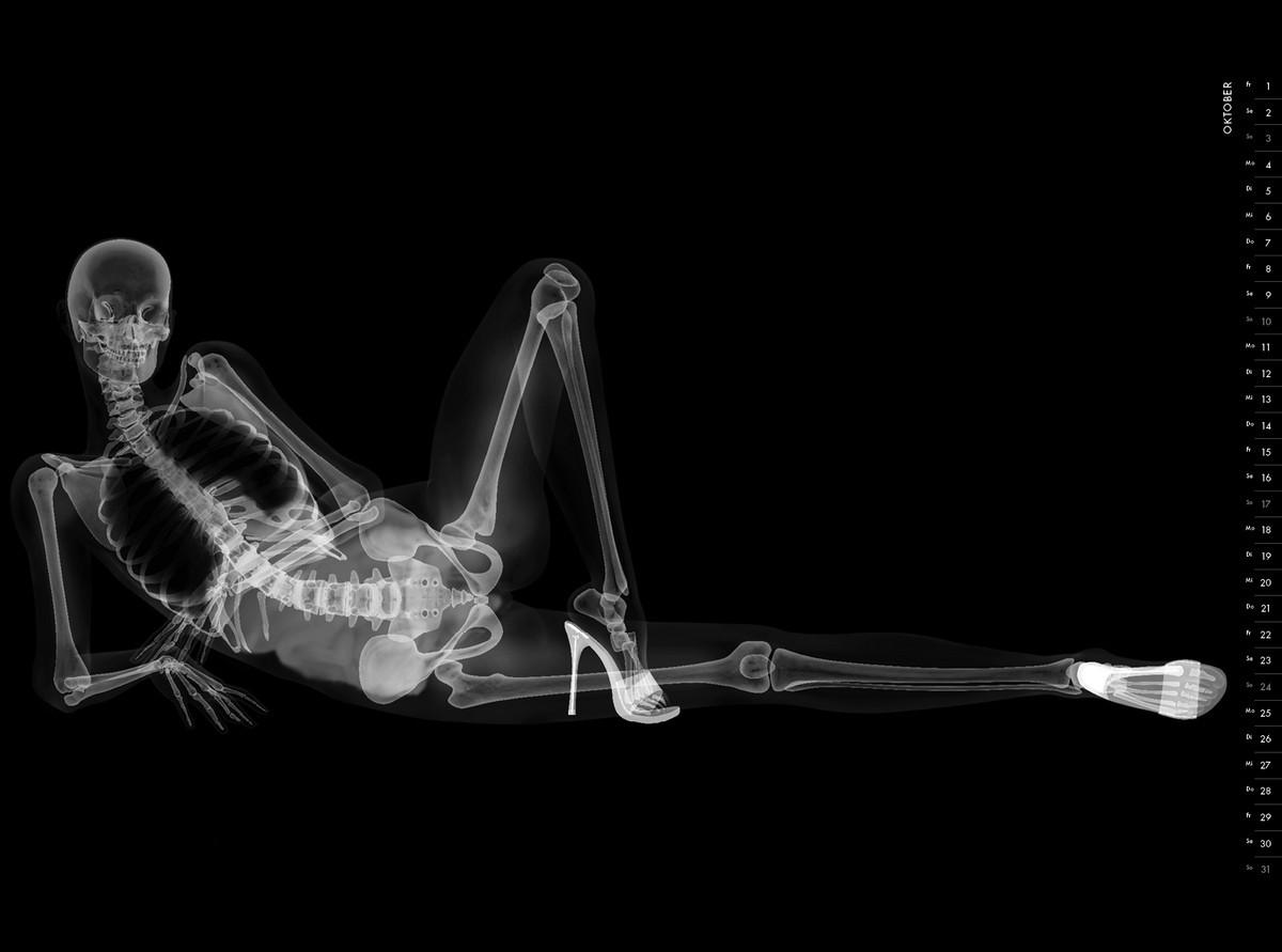 Картинка девушки рентген